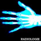 Kinésithérapie et radiologie kiné à domicile