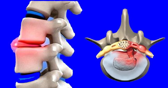hernie discale kinésithérapie